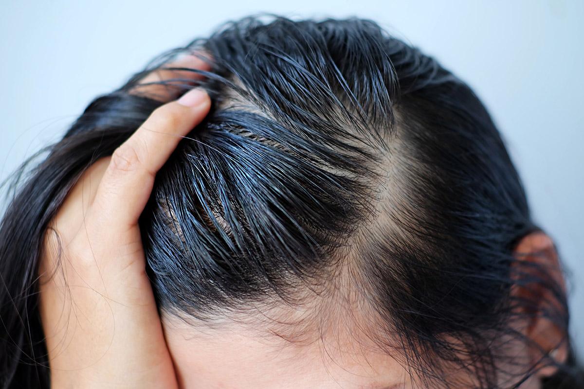 油頭,油性頭皮,油性髮質,去油洗髮精,去屑洗髮精