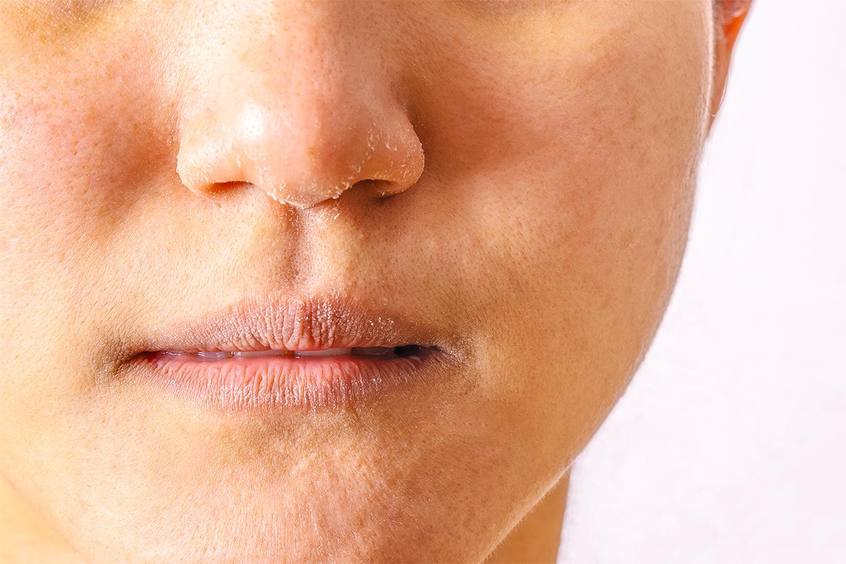 肌膚保養、臉部保養、乾肌、缺水、保濕