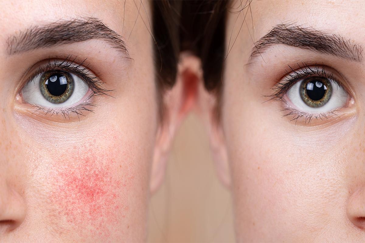 敏感肌、泛紅、肌膚問題、換季保養